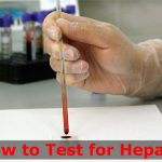 How to Test for Hepatitis?