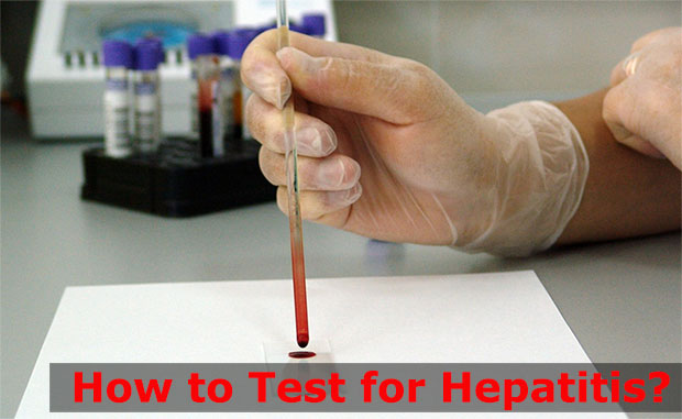 How to Test for Hepatitis